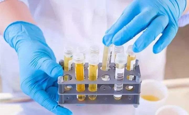 恭逸尿检智能马桶可协助泌尿系统疾病的诊断和疗效观察